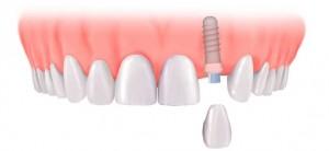 стоматологические импланы