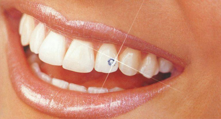 Сверкающие зубы- украшения