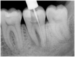 Диагностика зубов, рентген зубов, радиовизиография