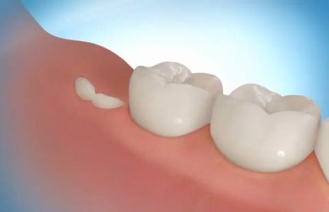 обновление зубов, установка имплантантов в киеве