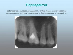 Периодонтит и его лечение