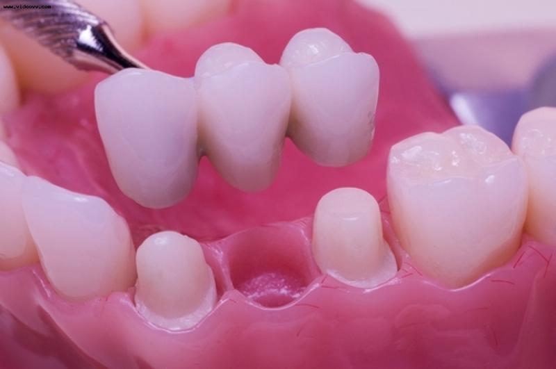протезирование зубов в киеве, протезирование киев,